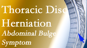 Cox Chiropractic Medicine Inc cares for thoracic disc herniation that for some patients prompts abdominal pain.