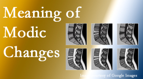 Cox Chiropractic Medicine INC sees many back pain and neck pain patients who bring their MRIs with them to the office. Modic changes are often seen.