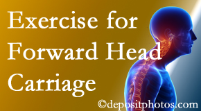 Fort Wayne chiropractic treatment of forward head carriage is two-fold: manipulation and exercise.