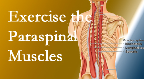 Fort Wayne Chiropractic Radiological Center explains the importance of paraspinal muscles and their strength for Fort Wayne back pain relief.