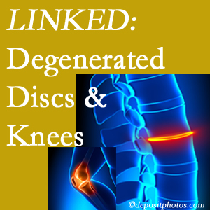 Degenerated discs and degenerated knees are not such strange bedfellows. They are seen to be related. Fort Wayne patients with a loss of disc height due to disc degeneration often also have knee pain related to degeneration.