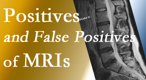Fort Wayne Chiropractic Radiological Center carefully decides when and if MRI images are needed to guide the Fort Wayne chiropractic treatment plan.